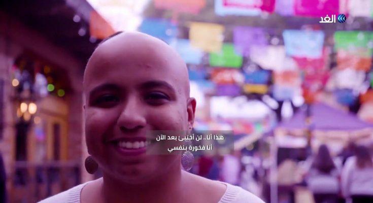 """فقدت شعرها بسبب الثعلبة فأطلقت """"مبادرة حب نفسك كما تكون"""" 135 جامعة في 28 دولة تحتفل بالمبادرة -التيماء"""